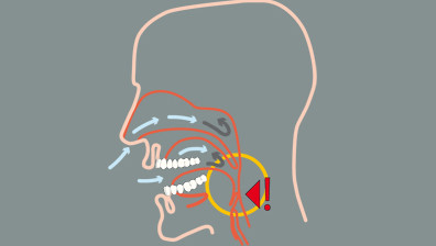 Sleep apnea is a short-termed breathing arrest during ones sleep, which causes snoring.