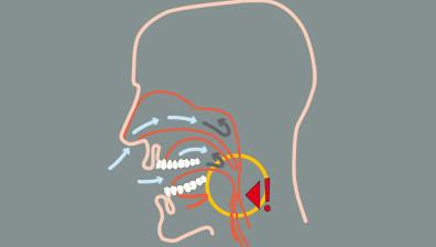 Schlaf-Apnoe ist ein kurzzeitiger Atemstillstand während des Schlafens, durch Schnarchen verursacht.