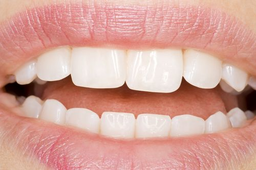 Teeth Whitening, also known as teeth bleaching or lightening, can remove tooth discolouration and produce brilliant white teeth.