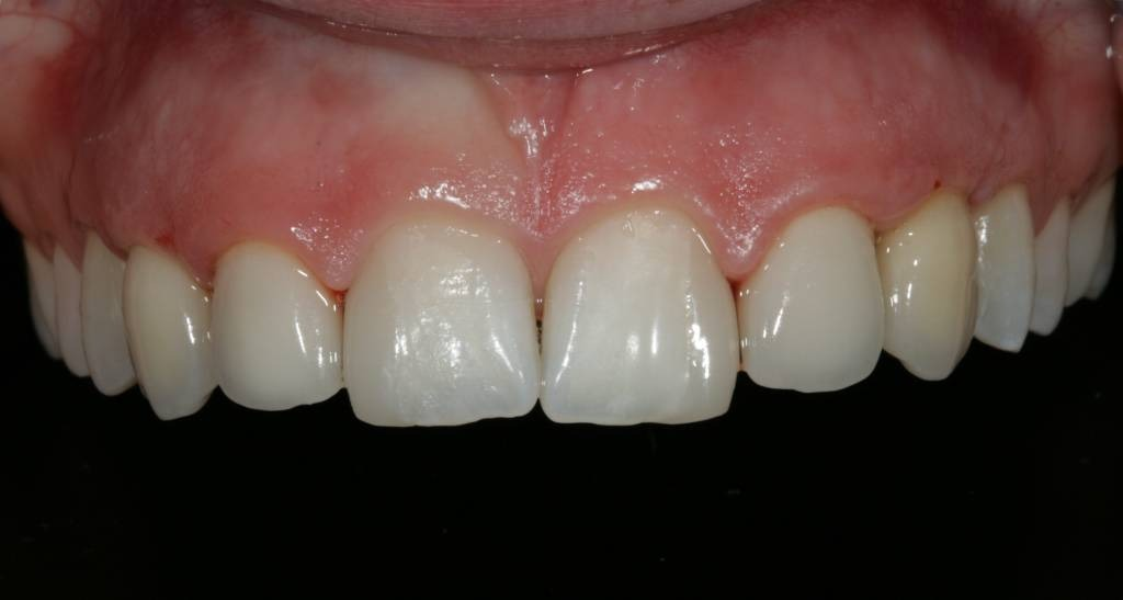 An all-ceramic dental implant with a Zircon crown can hardly be distinguished from natural teeth.