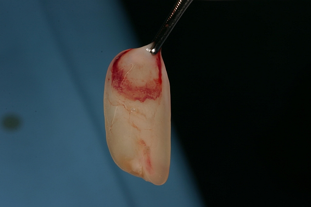 Eigenblutplasma, fertig zum Einsatz - Zahnarztpraxis Dental-Planet in Quesada, Spanien