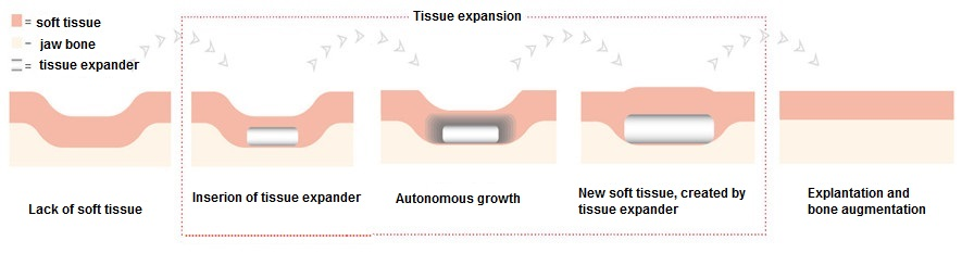 How the osmotic tissue expander works - implantology Dental Planet in Spain