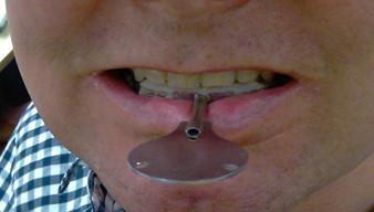 durch knirscherschiene zahnwurzelentzündung