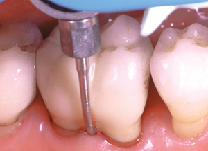 The periodontitis treatment is carried out with a special device (Vector Pro by the company Dürr) which removes bacteria and concrements from gum pockets.
