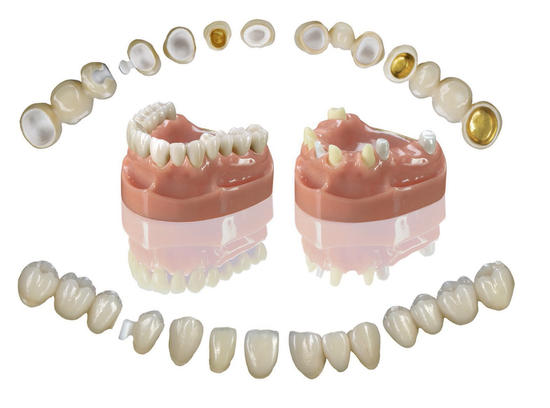 Examples of dental prosthetics at our dental care centre in Spain, Torrevieja, Alicante, Rojales - Dental Planet