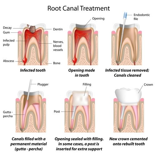 Course of a root canal treatment: the tooth is drilled out, the tooth nerve removed and the root canal thoroughly cleaned. Then the root canal gets filled and sealed.