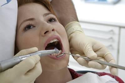 Entfernung der Zahnbeläge bei einer PZR - Zahnarztpraxis Dental Planet, Quesada, Rojales in Spanien
